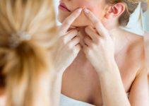 cómo quitar el acné