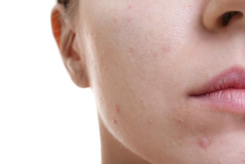 como eliminar la grasa de la cara