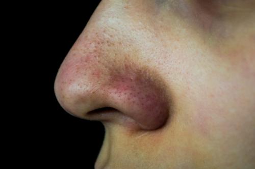 Como eliminar un grano de la nariz rapido