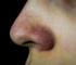 eliminar granos de la nariz