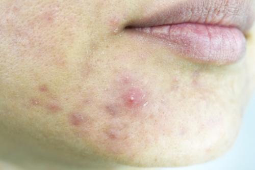 espinillas del acné